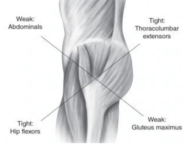 lower cross syndrome image final